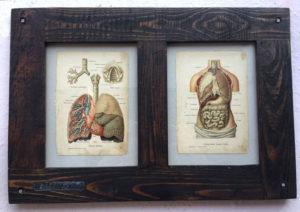 Anatomia-1900-ram-stare-drevo